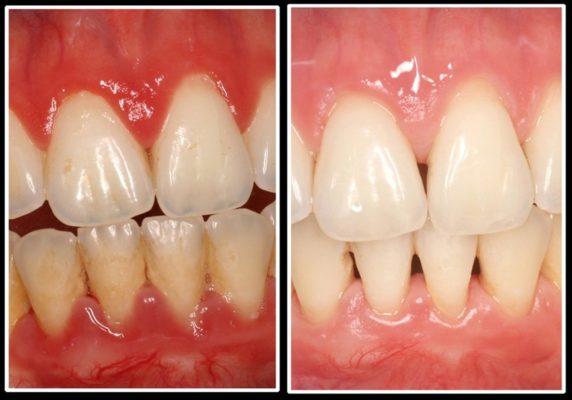 18 572x400 - Parodontie: les traitements laser assistes sur les infections bacteriennes et les dents déchaussées