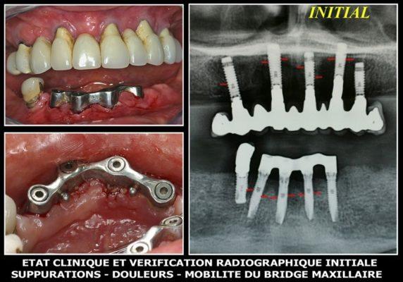 26 572x400 - Intérêts des lasers pour guerir les infections autour des implants (peri implantites)