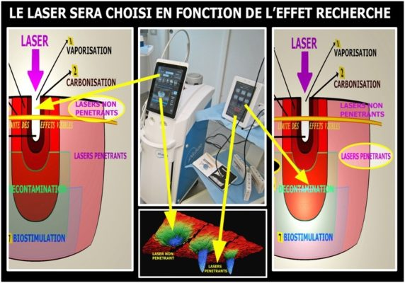 5 1 572x400 - Les principaux effets et comportements des differents rayonnements laser sur les tissus de la cavite buccodentaire