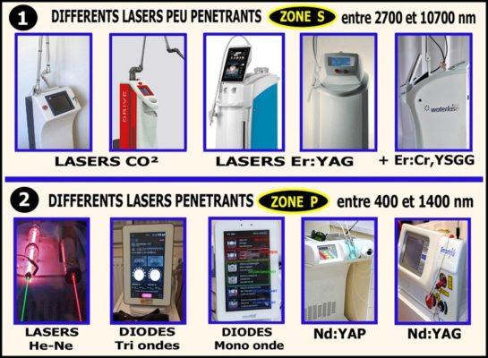 7 2 545x400 - Les principaux effets et comportements des differents rayonnements laser sur les tissus de la cavite buccodentaire